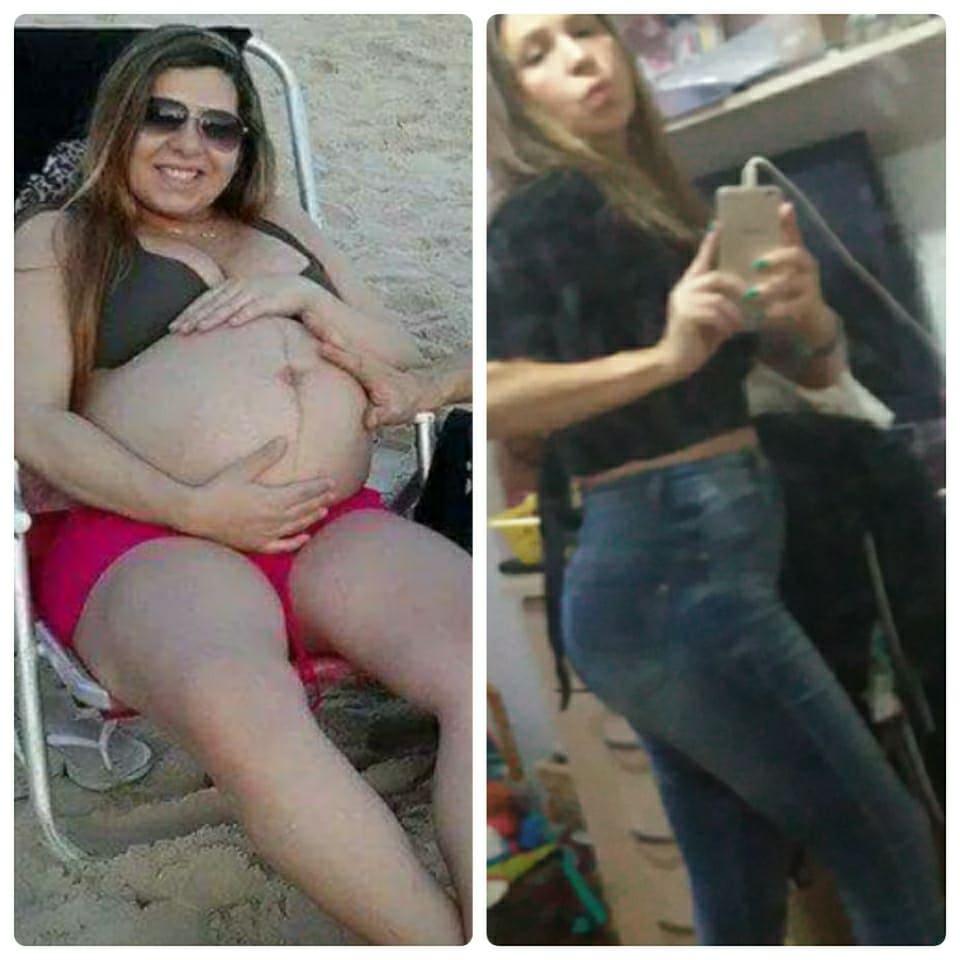 A Nutri gestante com 30 kg a mais e após 3 anos a perda deste.